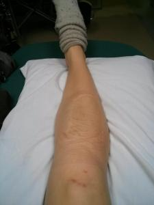 My leg with field bandaging off at the ER